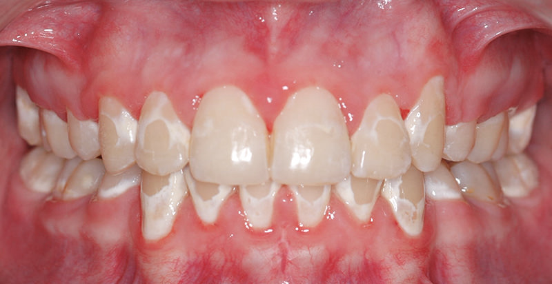 how to get white spots off teeth at home